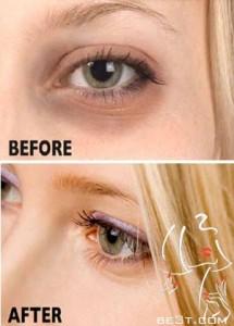 نکات مفید در رابطه با کاهش تیر گی زیر چشم