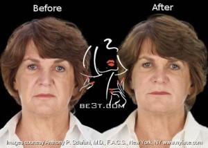 مزوتراپی بیولژیک (در زمینه پوست، مو وزیبایی ) چگونه است؟