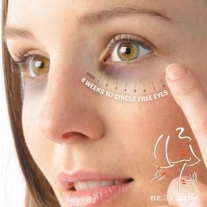 تیرگی و کبودی دور چشم را چگونه درمان کنیم ؟