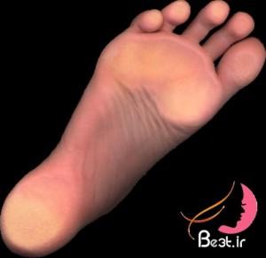 چگونه ترک پاشنه پا را درمان کنیم ؟