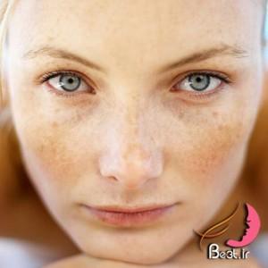 رفع کک و مک با 15 روش
