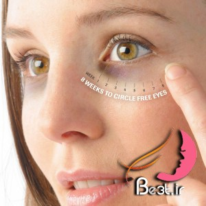 کاهش تیرگی دور چشم از زبان پزشک چینی با 8 روش