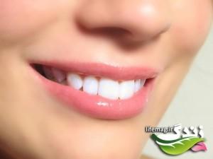 white_teeth-500x375