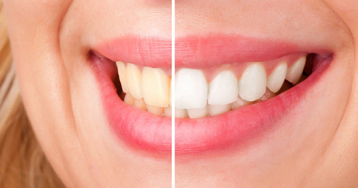 white-teeth-2