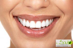 دندان هایی درخشان و سفید با 6 روش خانگی