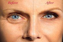 رفع پف زیر چشم با سه روش آسان